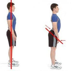 反り腰の原因と見分け方