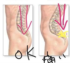 反り腰、骨盤が前傾していると腰痛になる