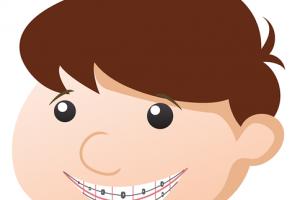 歯の矯正を安く早く自力で治す