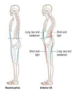 腸腰筋と前太ももの筋肉が硬いから腸腰筋と前太ももの筋肉が硬いと反り腰になる